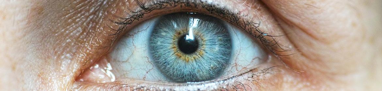What causes bloodshot eyes? | Lenstore co uk