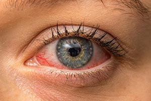 glaucoma causes symptoms and treatment lenstore co uk