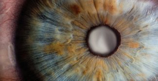 Close up of eye and cataract