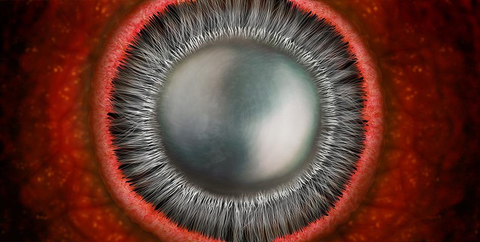 Crystalline Lens